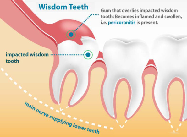 wisdom tooth removal procedure