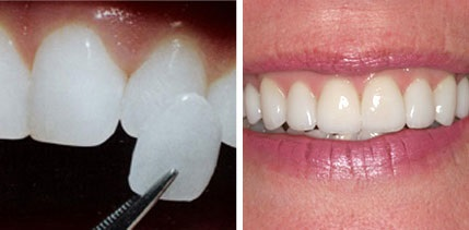veneers in lewisville tx