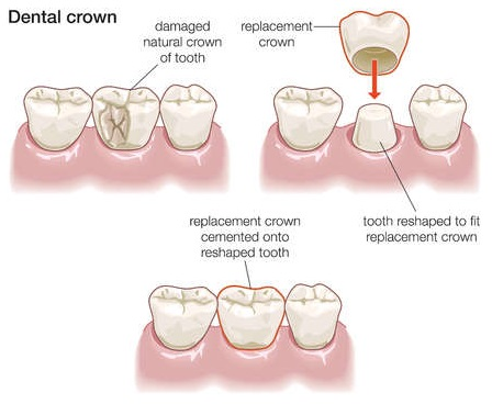 dental crowns lewisville