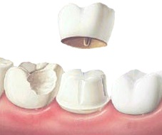 dental crowns procedure in Lewisville Tx
