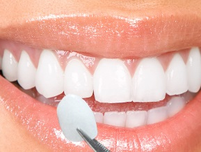 dental veneers after placement