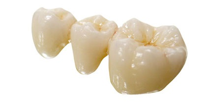 dental bridges in lewisville tx