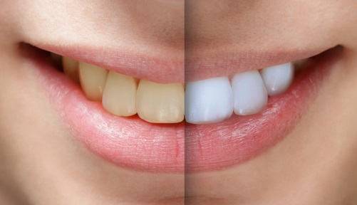 teeth bleaching before and after at CareWay Dental